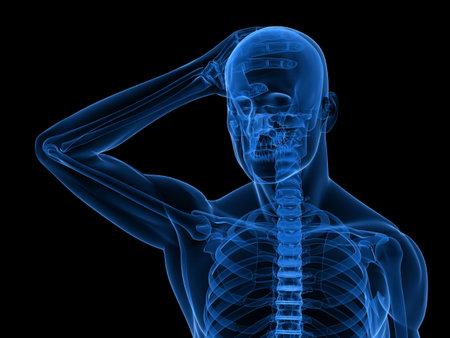 inflamed: x-ray human skeleton - headachemigraine illustration
