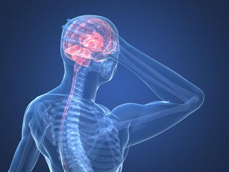 dolor de cabeza: esqueleto humano - ilustraci�n de dolor de cabeza y migra�a  Foto de archivo