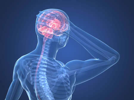 headache: human skeleton - headachemigraine illustration Stock Photo
