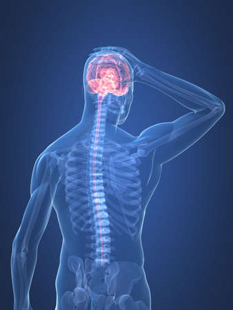 headaches: human skeleton - headachemigraine illustration Stock Photo
