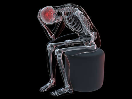 sitting skeleton with headache/migraine Stock Photo - 6244212