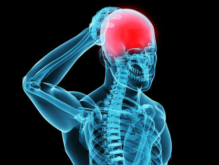 inflamed: human skeleton with headachemigraine  Stock Photo