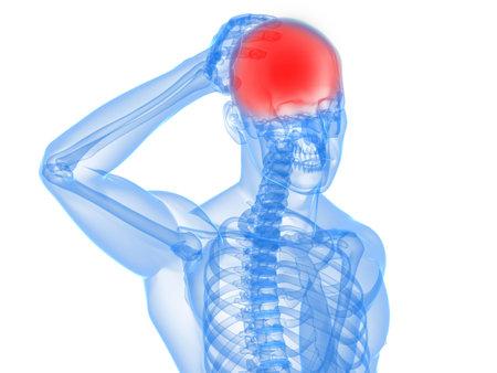esqueleto humano: esqueleto humano con dolor de cabeza y migra�a  Foto de archivo