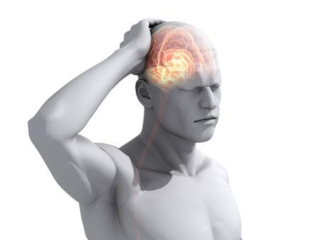 headaches: achemigraine illustration