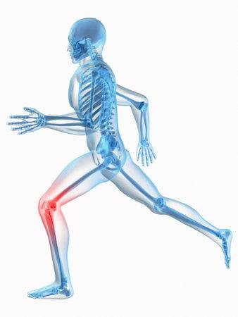 de rodillas: ejecutando el hombre - rodilla dolorosa  Foto de archivo