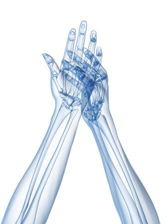 phalanx: x-ray hands - arthritis