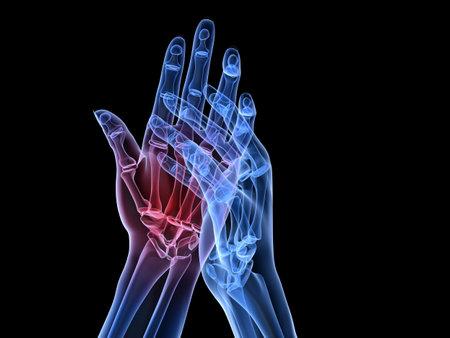 artritis: radiograf�a de las manos - artritis  Foto de archivo