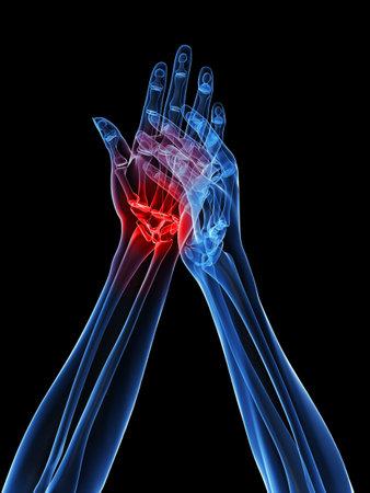 rheumatoid: x-ray hands - arthritis