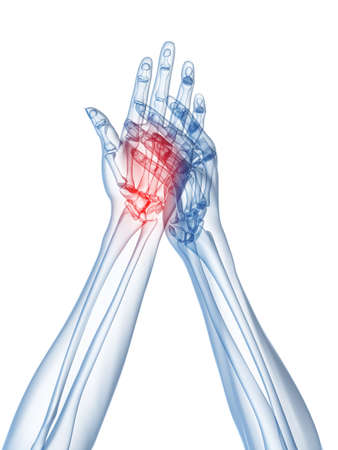 inflamed: x-ray hands - arthritis