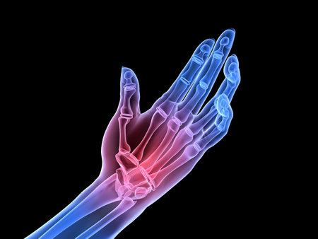 artrite: mano di raggi x - artrite