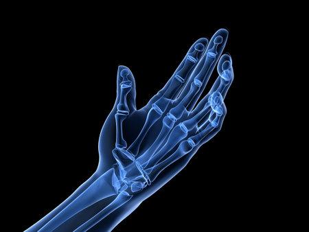 phalanx: x-ray hand - arthritis