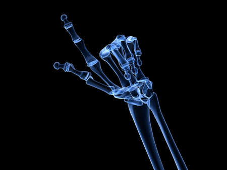 inflamed:  x-ray hands - arthritis  Stock Photo