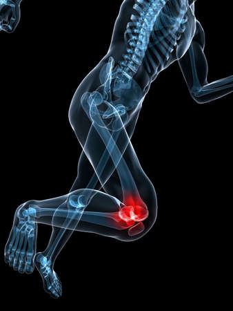 painful: running skeleton with painful knee Stock Photo