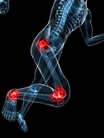 jogger: running skeleton with painful knees and hips