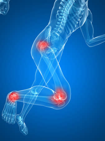 painful: running skeleton with painful knees and hips