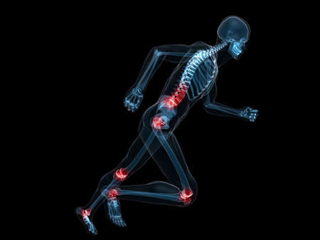 painful: running skeleton with painful joints