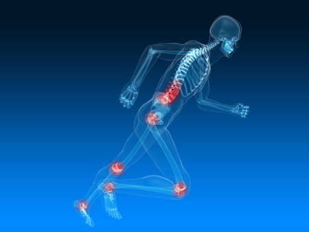 inflamed: running skeleton with painful joints