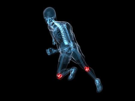 ejecutando el esqueleto con las rodillas dolorosas  Foto de archivo - 6373693