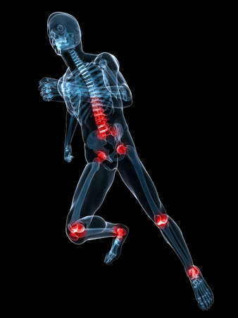 running skeleton with painful joints