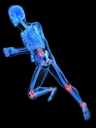 skelett mensch: Running Skelett mit schmerzhaften Gelenken
