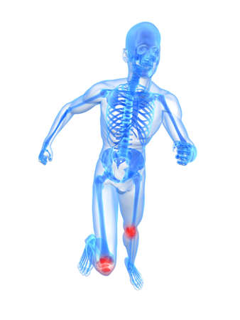 running skeleton with painful knees photo