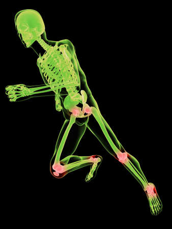 running skeleton with painful joints photo