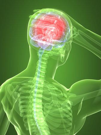 headaches: headachemigraine illustration Stock Photo