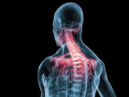 inflamed: transparent human body with inflamed neck