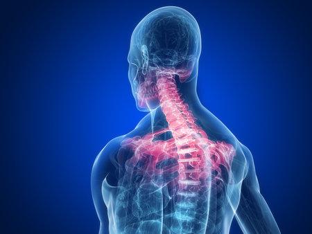 osteoporosis: cuerpo humano transparente con cuello inflamado