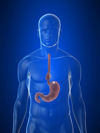 esophagus: stomach knot