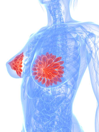 women breast: breast cancer