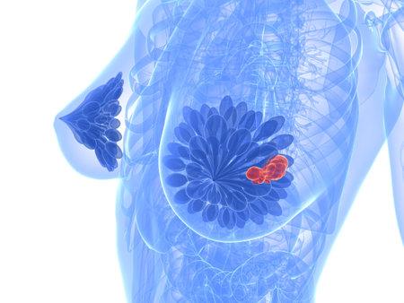 pechos: c�ncer de mama