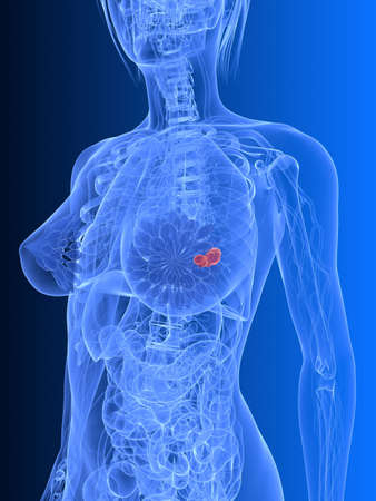 transparent female body - breast cancer Stock Photo - 6530606