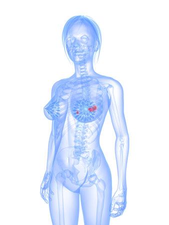 transparent female body - breast cancer photo