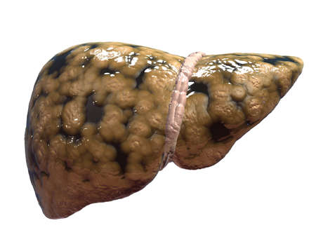 fatty liver Stock Photo - 6530607