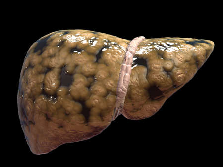 fatty liver Stock Photo - 6530499