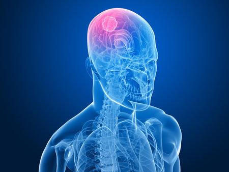cerebral: x-ray head - cerebral tumor  Stock Photo