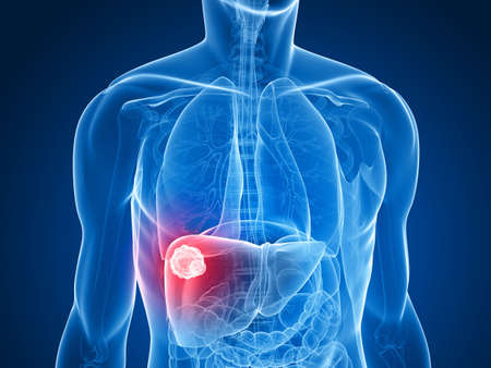 human liver: transparent body - liver cancer Stock Photo