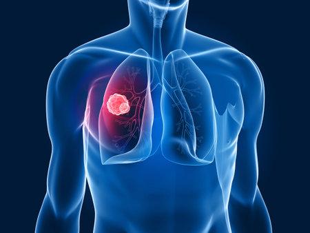 lungenkrebs: Transparente K�rper - Lungenkrebs