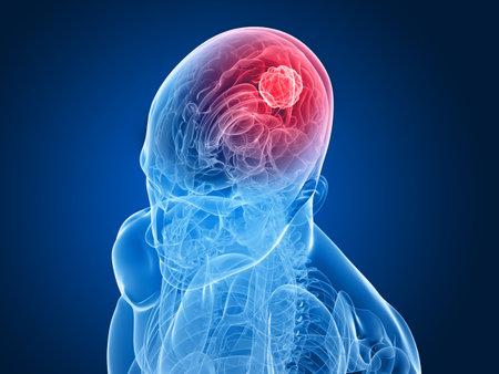 x-ray head - cerebral tumor  Stock Photo - 6588782