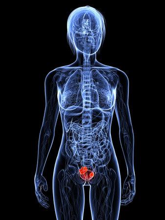 metastase: transparent female body with tumor in uterus