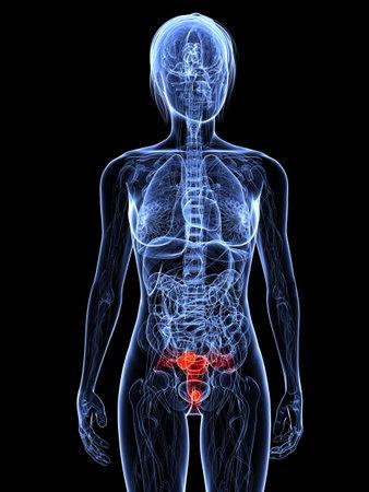 transparent female body with tumor in uterus photo