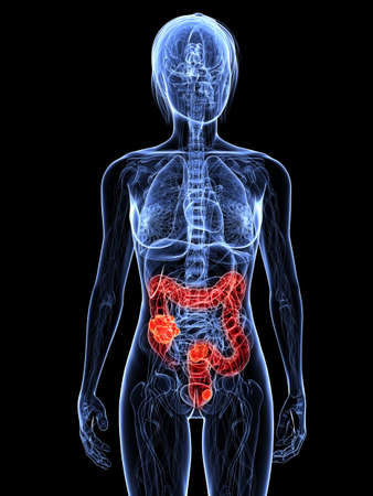 colon cancer: transparent female body with tumor in colon
