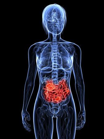 metastase: transparent female body with tumor in small intestines Stock Photo