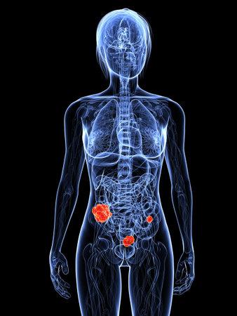 metastase: transparent female anatomy with tumor in colon