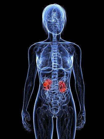 강조된 신장을 가진 투명한 여성 몸 스톡 콘텐츠 - 7308800