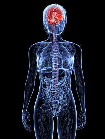 cuerpo femenino: cuerpo femenino transparente con cerebro resaltada