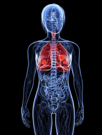 transparent female body with hihglighted lung