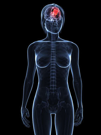 transparent female body with tumor in brain photo