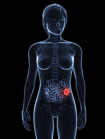 small intestines: transparent female body with tumor in small intestines Stock Photo